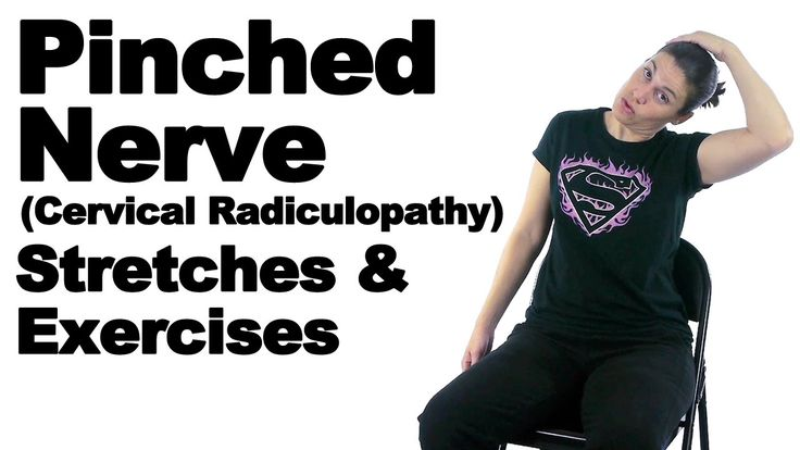 A pinched nerve (aka cervical radiculopathy) is basically when the nerve coming out of the spine gets irritated at the nerve root. This can cause pain and weakness going down into the arm. These exercises should help. See Doctor Jo's blog post about this at: http://www.askdoctorjo.com/pinched-nerve