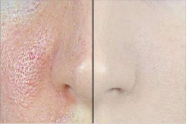 En la mayoría de los casos, las personas que tienen la piel grasa, tienen muchos poros grandes y visibles, que se odian. Anuncios Es por ello que estas personas están dispuestas a hacer cualquier cosa para tratar de deshacerse de estos poros. Por lo general tratan de hacer que sean menos visibles por la reducción …