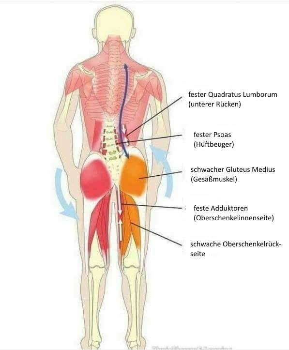 Beckenschiefstand korrigieren – Übungen gegen ein schiefes Becken