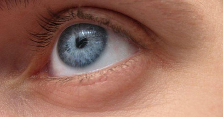 Remedios para el desprendimiento del vítreo. El humor vítreo llena el globo ocular, lo que ayuda a mantener su forma. El desprendimiento del vítreo posterior se produce cuando el humor vítreo se separa de la retina, a la que se acopla en la parte posterior del globo ocular. Esto ocurre a menudo como parte del proceso de envejecimiento, cuando el vítreo se licua en el centro y el humor ...