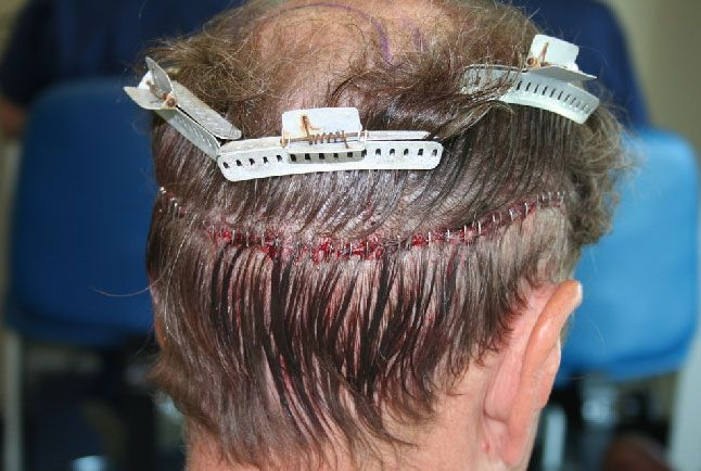 Fue hair transplant surgery dr rajat guptais best hair fue hair transplant surgery dr rajat guptais best hair transplant surgeon in delhi india and well known for cheap and best hair transplant h pmusecretfo Gallery