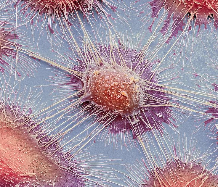 Colored scanning electron micrograph (SEM) of squamous cell carcinoma (cancer) cells from a human mouth. The many blebs (lumps) and microvilli (small projections) on the cells' surfaces are typical of cancer cells.
