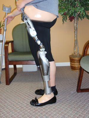 prosthetic limbs image | full-limb-prosthetic-limb-aloc-v.jpg
