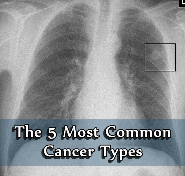 The 5 Most Common Cancer Types