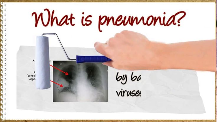 Pneumonia: Meaning and Symptoms - ✅WATCH VIDEO👉 http://alternativecancer.solutions/pneumonia-meaning-and-symptoms/   	  Pneumonia: meaning and symptoms What is pneumonia? Pneumonia is an infection in one or both lungs. It can be caused by bacteria, viruses or fungi. Bacterial pneumonia is the most common type in adults. Pneumonia causes inflammation in the alveoli of the lungs, which are called alveoli. The...