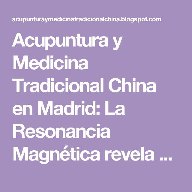 Acupuntura y Medicina Tradicional China en Madrid: La Resonancia Magnética revela que la acupuntura es beneficiosa para el Alzheimer