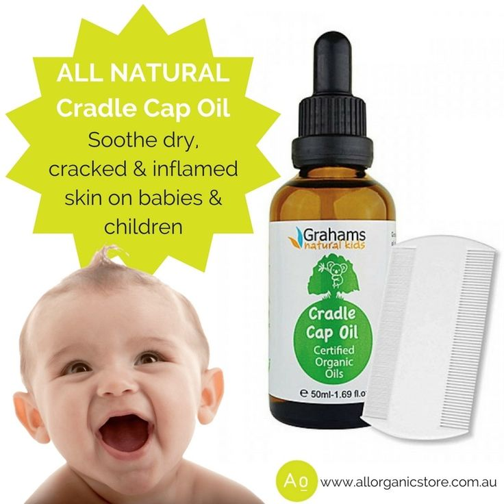 Does your baby have Cradle Cap? Graham's all natural Cradle Cap Oil is formulated with a variety of natural and organic ingredients to help soothe dry, cracked and inflamed skin on babies & children. Especially developed to soften the scalp, moisturise & help repair the skins barrier.