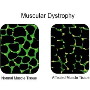 Treatment Options For Muscular Dystrophy