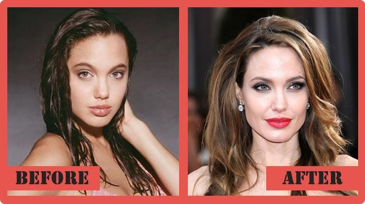 Angelina Jolie Plastic Surgery Before And After Angelina Jolie Plastic Surgery #AngelinaJolie #celebritypost