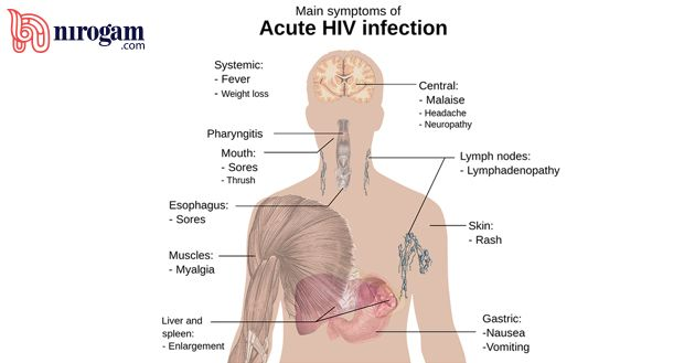 AIDS (Acquired Immunodeficiency Syndrome) is a sexually transmitted disease affecting your immune system caused due to HIV (Human Immunodeficiency Virus).