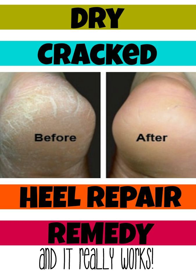 Cracked Heel Remedy (Make your Feet and Heels Super Soft!) - I love using this all summer long for soft feet and healthy feet.
