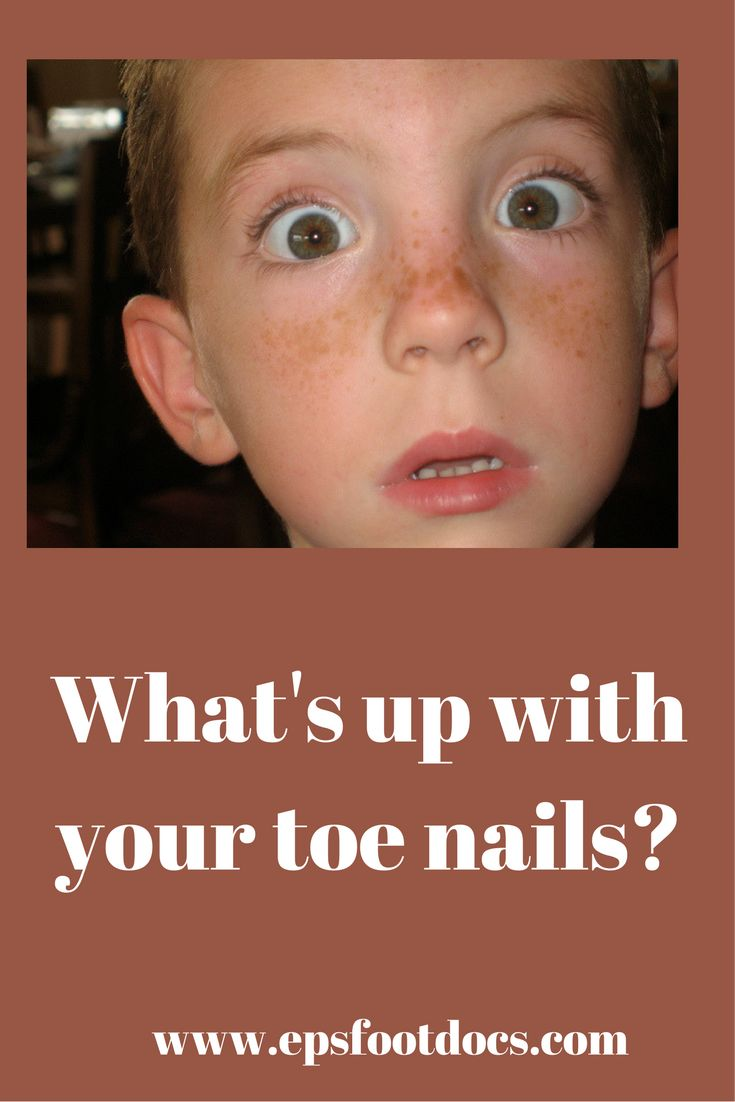 how to get rid of toe nail growth