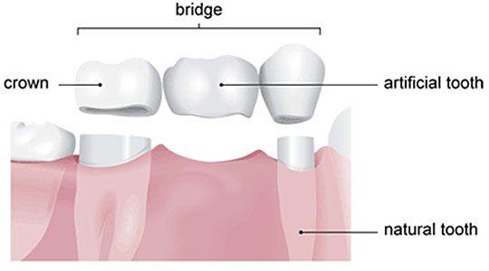 i vos dents adjacentes de l'espace dentaire sont en bonne santé, ces dents peuvent alors agir en tant que piliers du pont. Si vous avez besoin seulement d'une dent pour combler l'écart, alors il peut être résolu avec un pont de 3 éléments c'est á dire trois couronnes collées. Le prix d'un bridge de 3 pièces céramo-métallique est inférieur au coût d'un implant dentaire, car il coute 3 * 199 EUR, 597 EUR et vous n'avez pas besoin de deux visites à Budapest, contrairement au cas des implants.