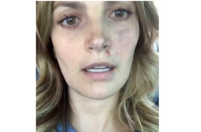 Actriz Juliana Galvis herida tras sismo en México - El Universal - Colombia
