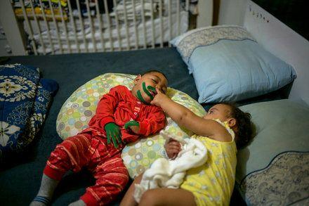 Pistas Sobre Danos Causados Pelo Zika Podem Estar Equivocadas Em Casos De Gêmeos