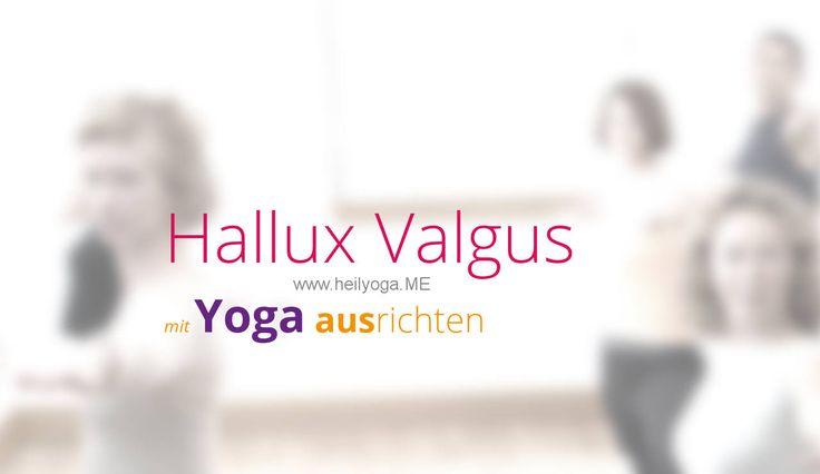 Hallux Valgus ist schmerzhaft und beeinträchtigend. Mit diesen Yoga-Übungen bestehen gute Chancen die grossen Zehen zu begradigen.