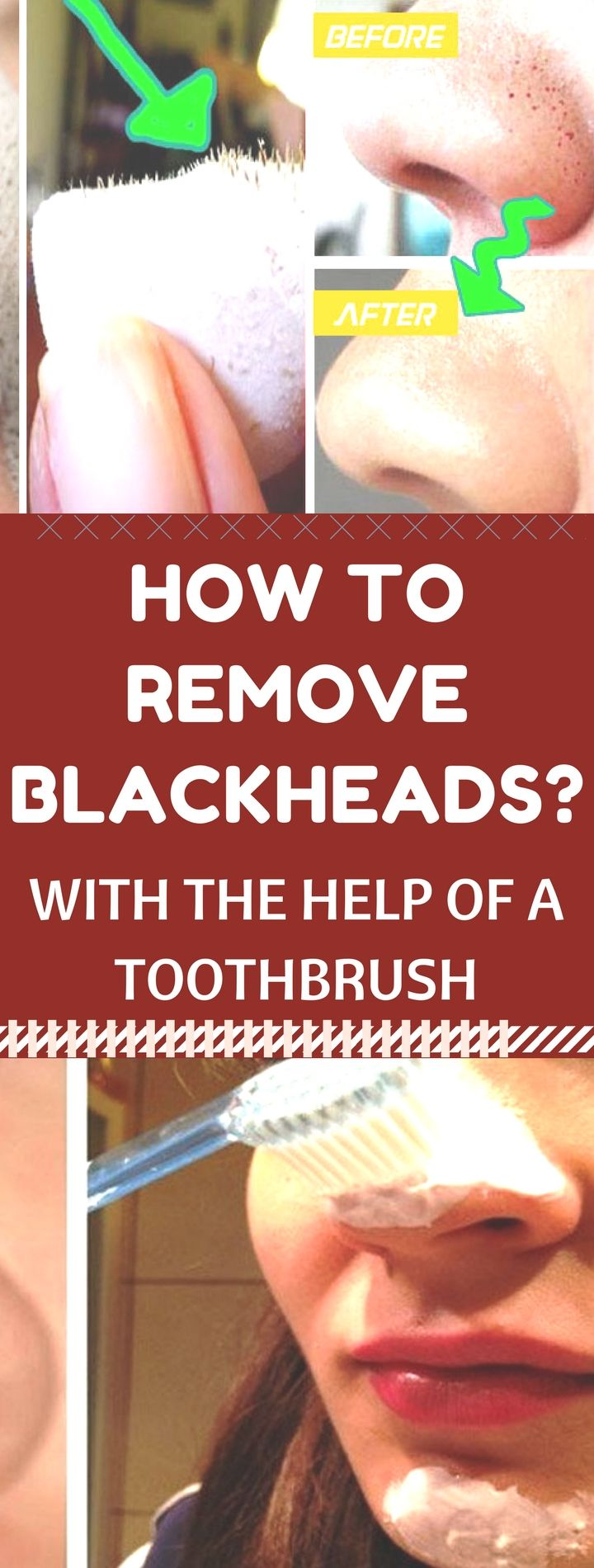 How to Remove Blackheads with the Help of a Toothb…