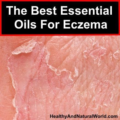 The Best Essential Oils For Eczema                                                                                                                                                     More