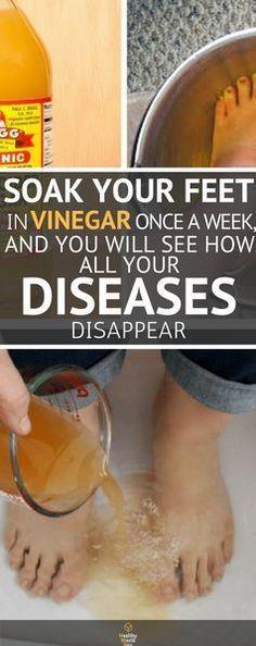 soak feet in apple cider vinegar