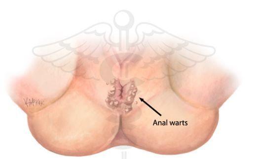 Symptoms of anal warts