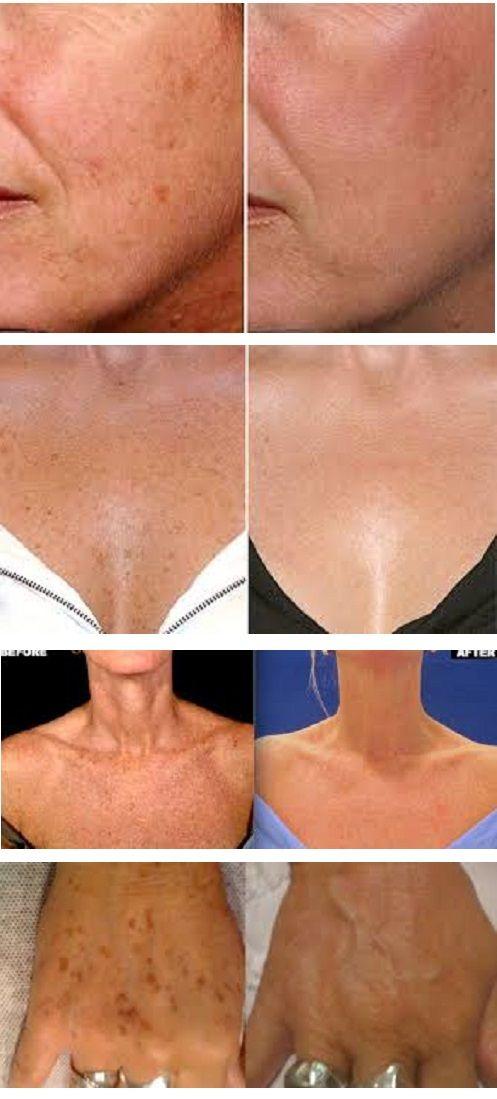 Как Избавиться от Пигметных Пятен на Лице:  Причины пигментных пятен могут быть разными: от перенесенных заболеваний, внешних воздействий на кожу — до возрастных изменений гормонального фона. Чаще всего наши специалисты имеют дело с поствоспалительной пигментацией кожи, например — после акне, прыщей и рубцов. На втором месте можно назвать лентиго, хлоазмы, мелазмы — пигментные пятна, возникающие от избытка УФ-излучения. Пигментные (белые и темные) пятна на коже лица также нередко образуются…