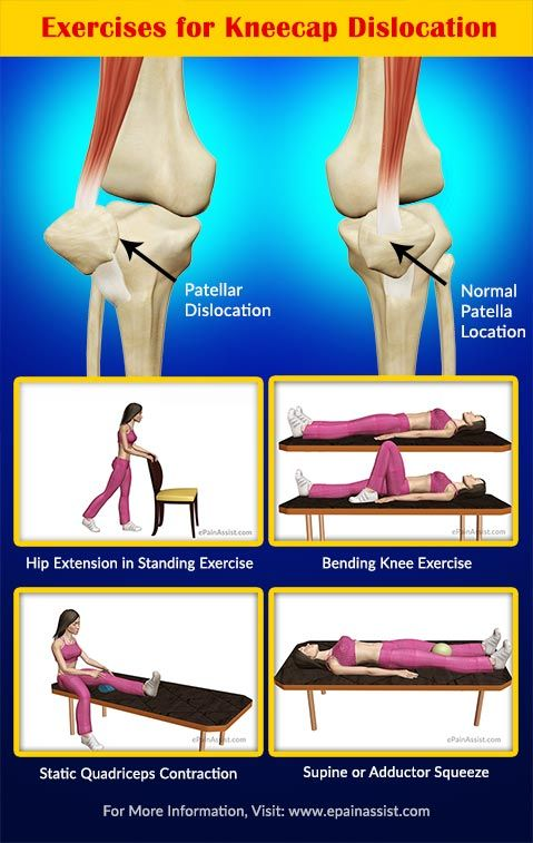 Exercises for Kneecap Dislocation or Patellar Dislocation Read: http://www.epainassist.com/sports-injuries/knee-injuries/recovery-exercises-prevention-of-kneecap-dislocation-or-patellar-dislocation