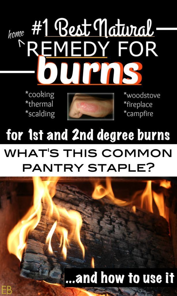 #1 Best Natural Home Remedy for Burns