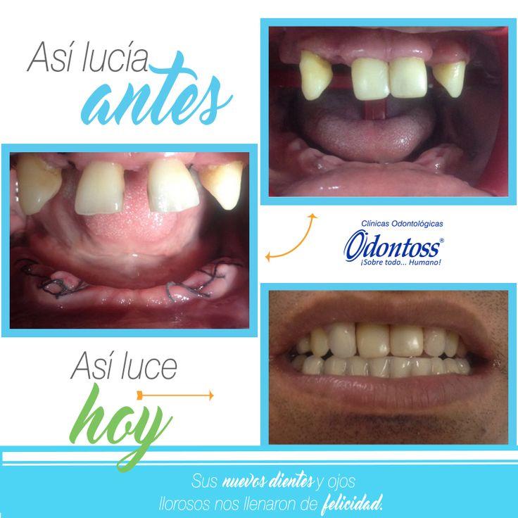 Compartimos el procedimiento que realizo el Dr. Esteban Echavarría en la sede de Rionegro.  Paciente con dientes grandes y dispersos, se realizó un pulido suave en distal, luego se cubrió ambas zonas con resina para proteger el esmalte.