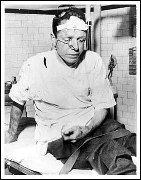May 14th. 1961: Freedom Rider James Peck is beaten up at Anniston