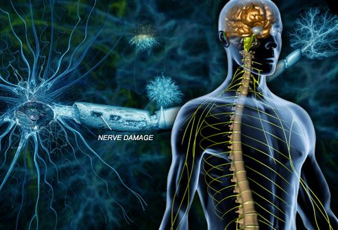 What Is Multiple Sclerosis (MS)?  MS is a chronic disease that damages the nerves in the spinal cord and brain, as well as the optic nerves. Sclerosis means scarring, and people with MS develop multiple areas of scar tissue in response to the nerve damage. Depending on where the damage occurs, symptoms may include problems with muscle control, balance, vision, or speech.