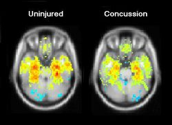 MRI scans showing an uninjured brain and a brain days after a concussion. Found on http://www.ninds.nih.gov/news_and_events This article gives information on the long lasting effects of concussions.  This is very important to my speech, because I talk about the dangers of long lasting symptoms of concussions. This was posted on May 10, 2011.