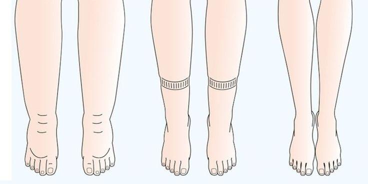 Czy czujesz, że Twoje nogi są ociążałe, napuchnięte, lecz nie tylko one, bo czasem dochodzi do tego, że nawet ręce czy też brzuch wydaje się nam jakby miał zaraz eksplodować, a to wszystko przez nadmiar