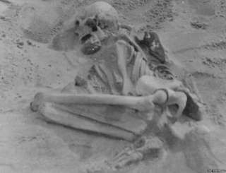 The earliest known case of rickets in the UK has been identified in a 5,000-year-old skeleton found in Scotland. The disease, caused by Vitamin D deficiency linked to lack of sunlight, can lead to weak and deformed bones.