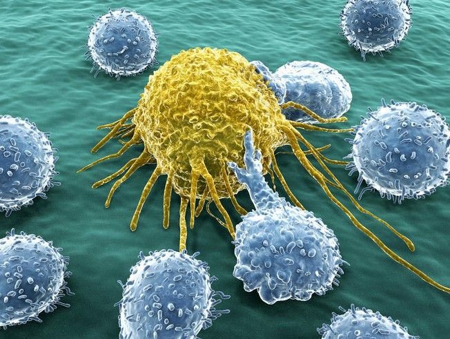 """Az immunsejt (kék) a """"halál csókját"""" adja át a ráksejtnek ( sárga). Fantasztikus fotó"""
