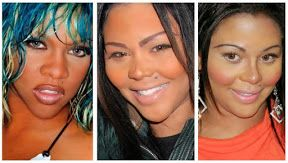 Visit our site http://www.lilkimplasticsurgery.net for more information on Lil Kim Plastic Surgery Time Line.Lil Kim Plastic Surgery with a healthy and balanced standpoint will intend to modify her physical body so regarding conquer a physical trait that is personally enjoyable to Lil Kim. Plastic surgery can be a favorable experience that regularly aids people get better satisfaction with their bodily looks.
