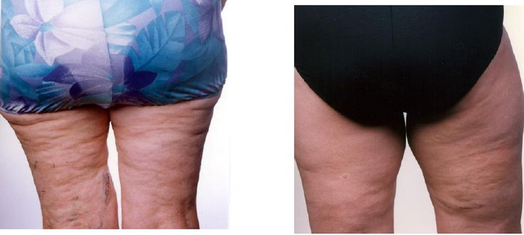 Cellulite Man Is there a cure?