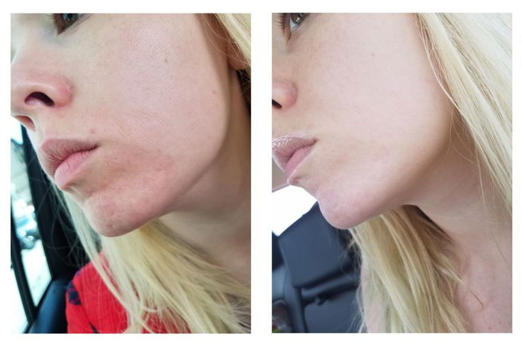 I Tried the Newest Laser Treatment for Acne Scars — Look at My Before and Afters. This aggressive treatment option, quite frankly, scared the hell out of me.