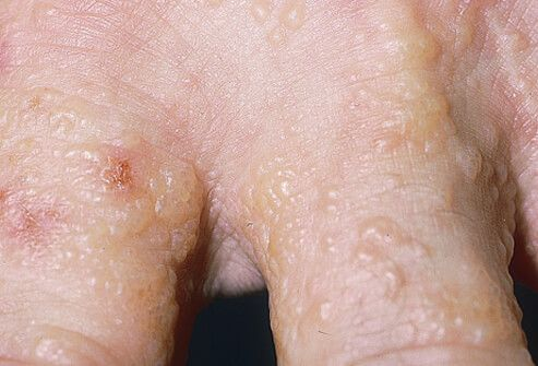 Dyshidrotic eczema (dyshidrotic dermatitis) is an irritation of the skin on the palms of the hands and soles of the feet characterized by clear, deep blisters that itch and burn.