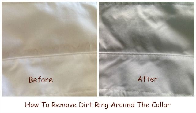 How To Remove Dirt Ring Around The Collar