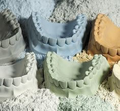 Gypsum model chipping can be a very frustrating issue for technicians in the dental laboratory. See what you can do to prevent it.