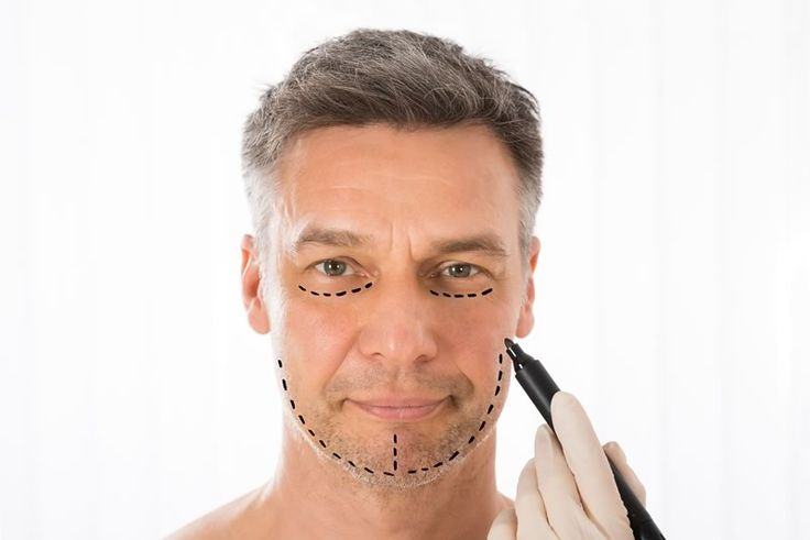 http://www.faceliftmiamiflorida.com/male-facelift/  An increasing number of men are opting for the male facelift. The technique and artistry involved in rejuvenating the male face is very different from a female face. It is therefore vital that you go to a plastic surgeon that has years of experience in performing facelift procedures for men. Visit Maimi Plastic Surgery to see how we can improve your manly appearance.