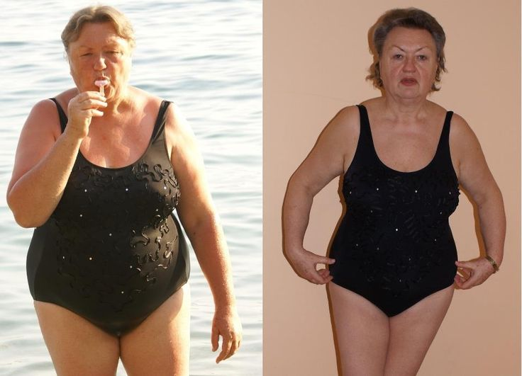 Fogyókúra 40 év feletti nőknek! – Mi ideális 40 év felett?