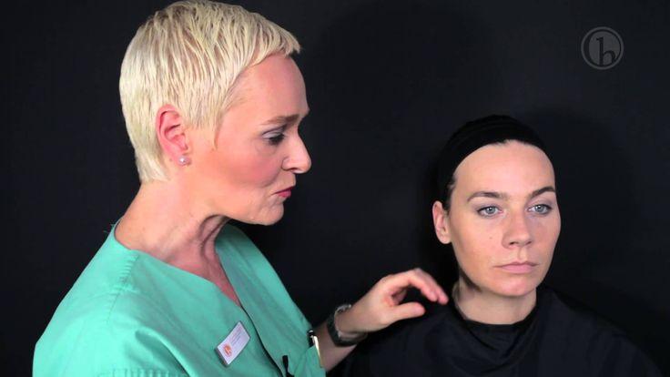 Lippenbehandlung mit Hyaluronsäure - Dr. Simone Hellmann