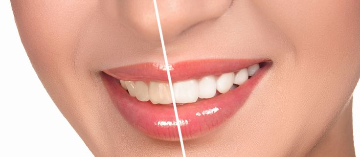 Does the whitening system work on Dentures, or Veneers? Is tooth whitening bad for your teeth? What happens during teeth whitening? https://www.sappertondental.com/frequently-asked-questions-teeth-whitening/