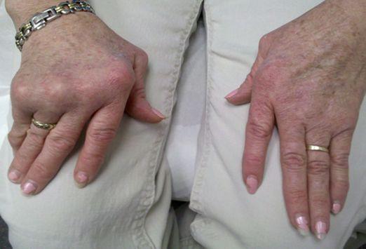 #Inclusion #Body #Myositis – A Muscle Disease