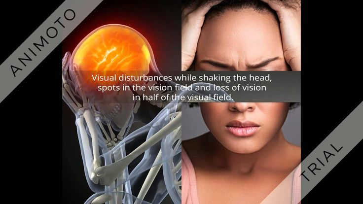 There are many patients suffering from cervical vertigo, the best way to battle cervical vertigo is by physical therapy. It has been effective in restoring loss of balance and movement impairment caused by cervical vertigo amongst patients. Here are all symptoms that you need to know about cervical vertigo and how physical and exercise therapy can help you manage it.