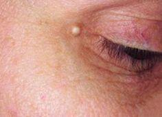 6 techniques naturelles pour retirer les grains de milium autour des yeux