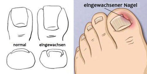 Zu eingewachsenen Nägeln kommt es wenn ein Nagel ins Fleisch oder ins Nagelbett einwächst und sich die anliegende Haut rötet und entzündet. Das kann bei jedem Zehen passieren, kommt jedoch am häufigsten am großen Zehen vor. Eingewachsene Nägel können sehr schmerzhaft sein.