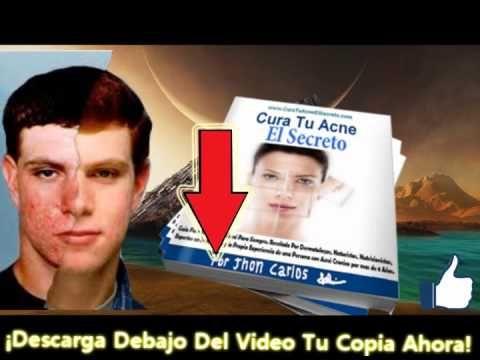 consejos para deshacerse del acné consejos sobre el tratamiento del acné - http://solucionparaelacne.org/blog/consejos-para-deshacerse-del-acne-consejos-sobre-el-tratamiento-del-acne/