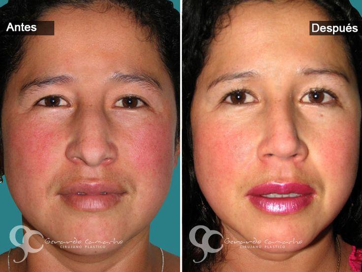 Cirugía de Nariz Mujeres Dr. Gerardo Camacho Cirujano Plástico  Estético y Reconstructivo Miembro de la Sociedad Colombiana de Cirugía Plástica  Bogotá –- Colombia Tel: (57)- 3187120345  WhatsApp